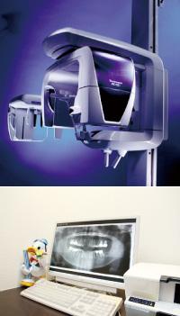歯科用CT、デジタルレントゲン