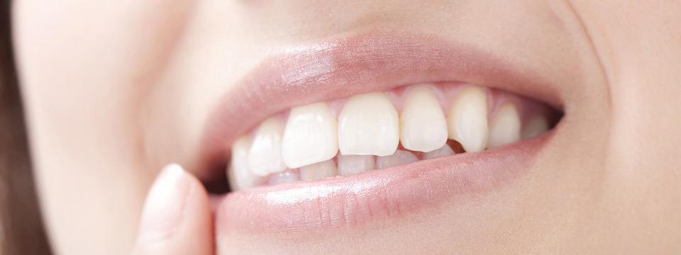 ホワイトニング併用でさらに美しい白い歯に!